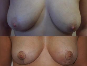 matopexy augmentation
