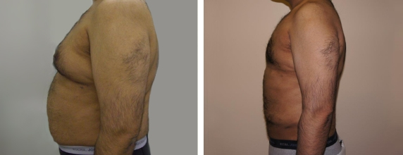 Vaser Liposuction London Before After