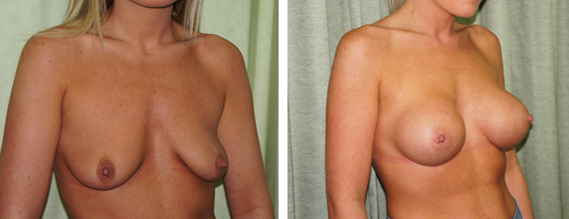 Breast Augmentation London - Before & After