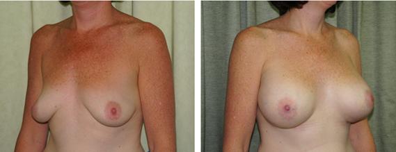 Breast Enlargement Harley Street - Before & After