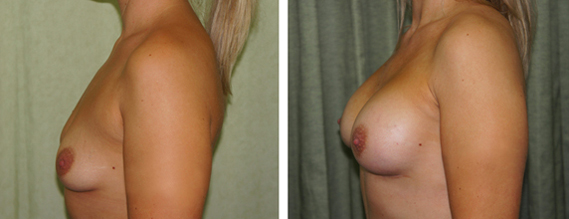 Breast Enlargement London - Before & After