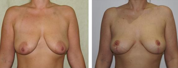breast-uplift-2