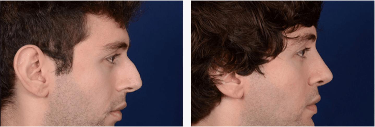 Nose Job Harley Street - Before & After