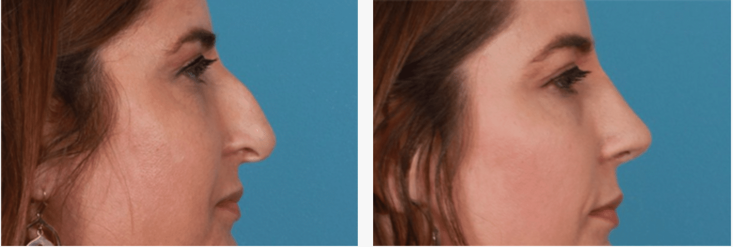 Rhinoplasty London - Before & After